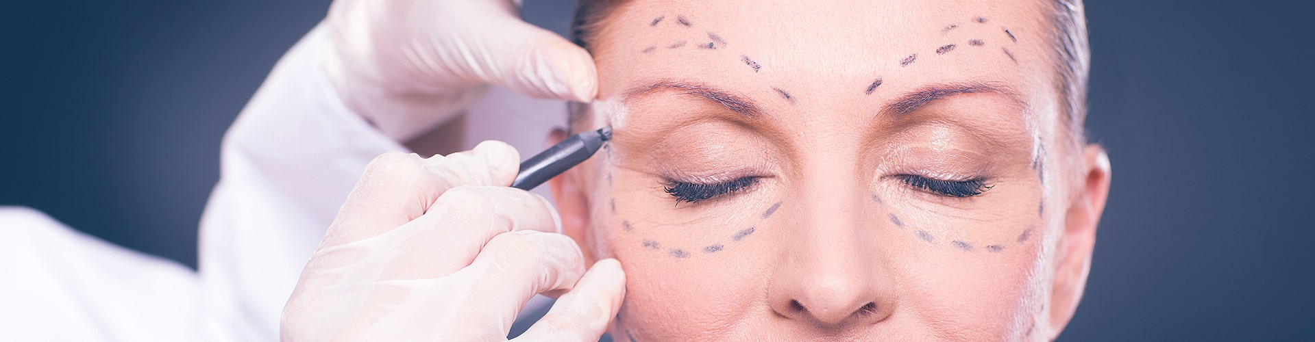 Best Solicitor for Cosmetic Surgery Claims in UK